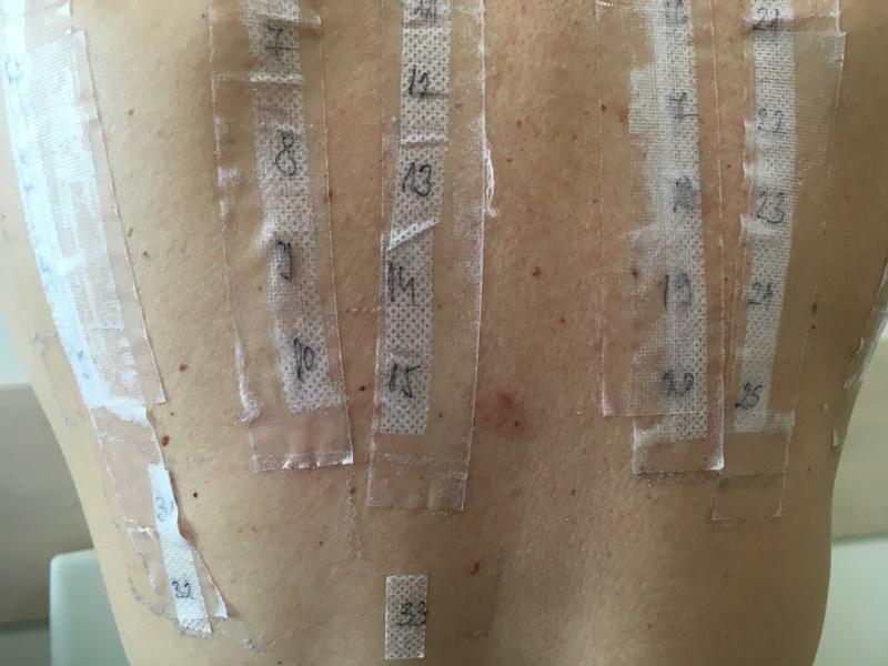 Allergia vizsgálat - Bőrgyógyászat