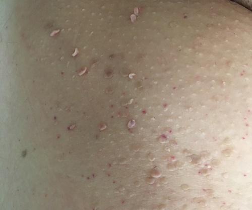 Fibroma - Dr. Ottó Iringó Ágnes