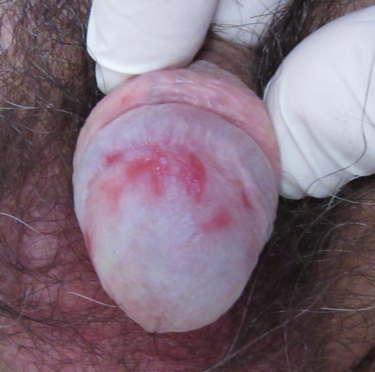 LSA - lichen sclerosus