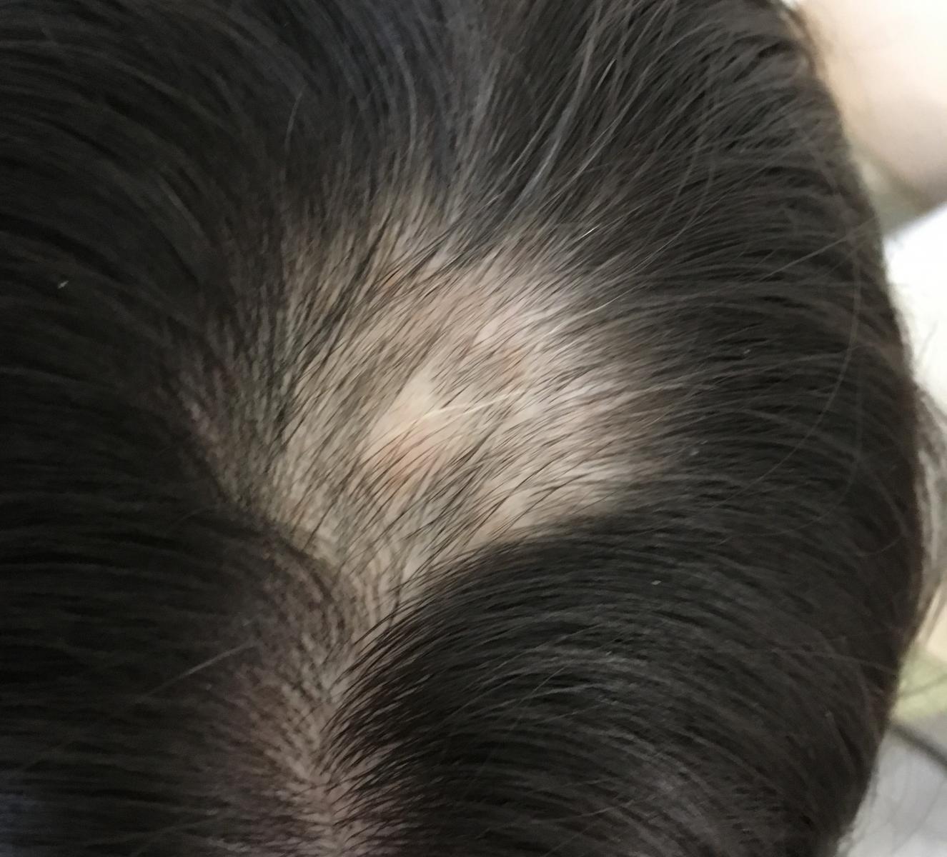 Alopecia, Foltos hajhullás - Dr. Ottó Iringó Ágnes