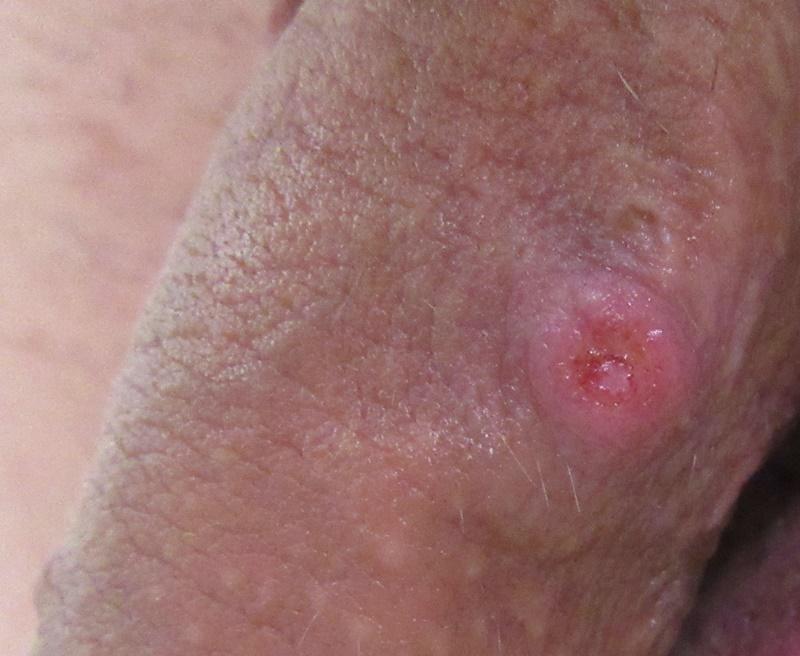 szifilisz első stádium a péniszen - Dr. Ottó Iringó Ágnes