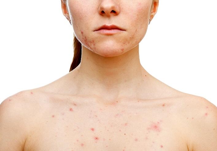 5 jó ok, amiért bőrgyógyásszal kezeltesd gyermeked pattanásos bőrét