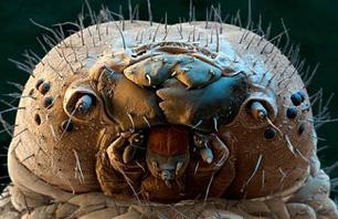 Felnőttkori pattanások? A pórusokban felszaporodott élősködők is okozhatják!