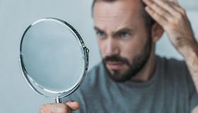 A hajhullás kezelése