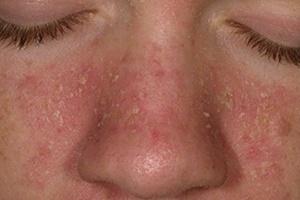Így történik seborrheás dermatitisz kezelése