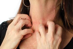 Mit érdemes tudni az allergia vizsgálatról?